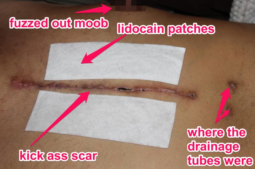 scar statement